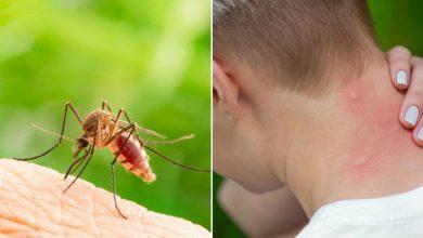 Photo of როგორ მოვაშოროთ სახლიდან კოღო!